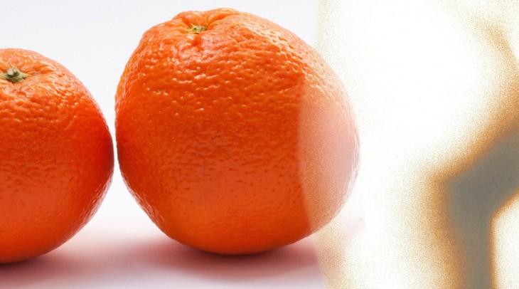 """Boj proti """"pomaranču"""": čo funguje najlepšie?"""